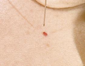 Blutschwämmchen vorher